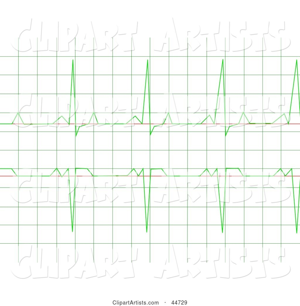 Regular Green Heart Rhythm Electrocardiogram ECG Graph