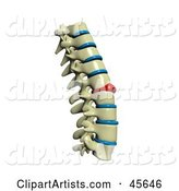 Human Spine with a Red Injured Spinal Disc